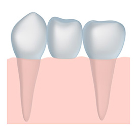 dental bridge solutions in Santa Barbara and Montecito