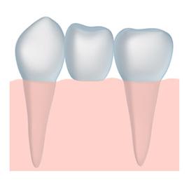 dental bridge solutions in Santa Barbara and Montecito