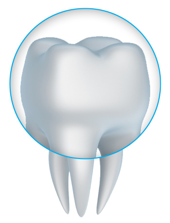 tooth crown and porcelain crowns with a Santa Barbara dentist Montecito